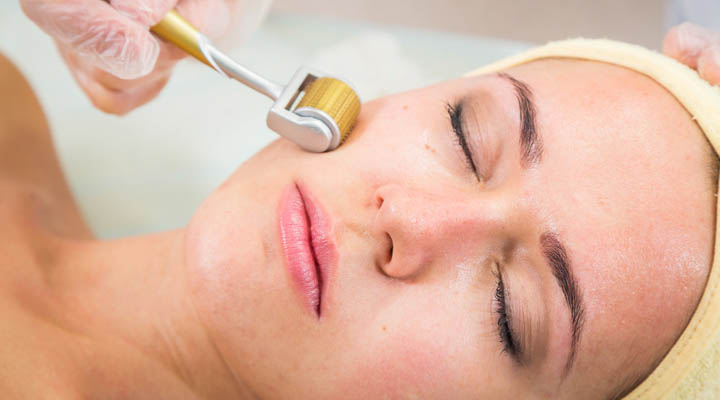 Microneedling and You